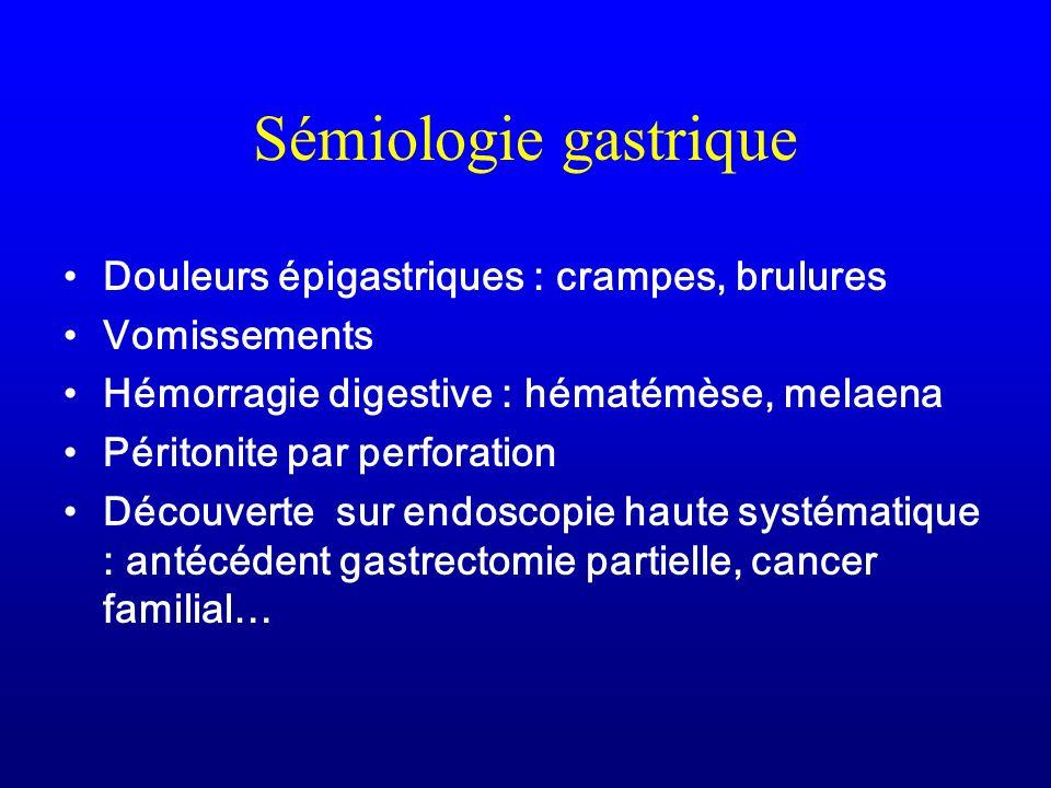 Sémiologie gastrique Douleurs épigastriques : crampes, brulures Vomissements Hémorragie digestive : hématémèse, melaena Péritonite par perforation Déc
