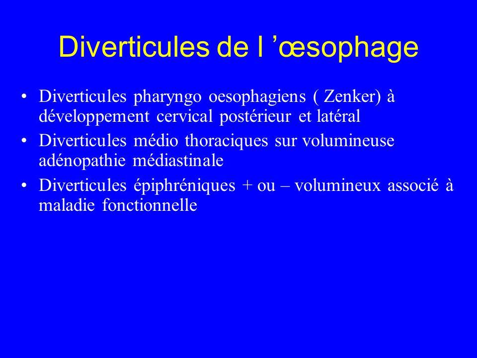 Diverticules de l œsophage Diverticules pharyngo oesophagiens ( Zenker) à développement cervical postérieur et latéral Diverticules médio thoraciques