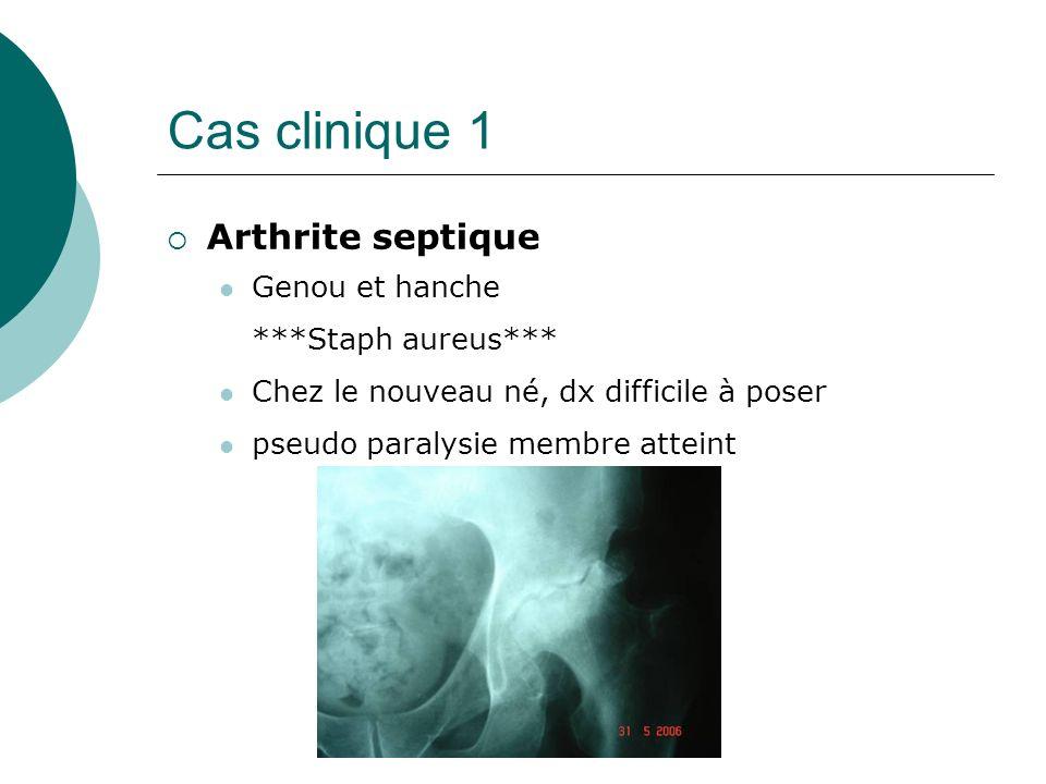Cas clinique 1 Arthrite septique Genou et hanche ***Staph aureus*** Chez le nouveau né, dx difficile à poser pseudo paralysie membre atteint