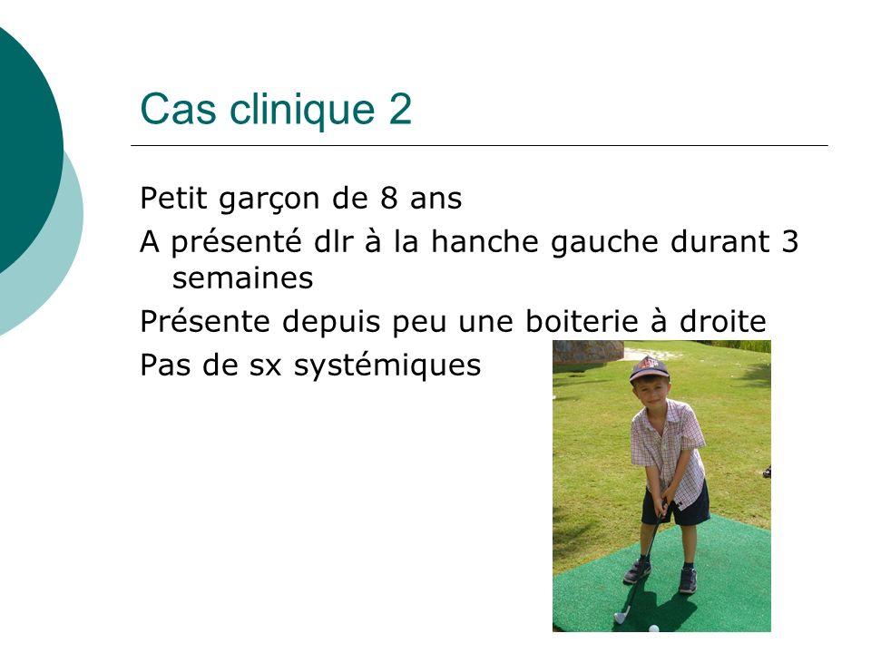 Cas clinique 2 Petit garçon de 8 ans A présenté dlr à la hanche gauche durant 3 semaines Présente depuis peu une boiterie à droite Pas de sx systémiques