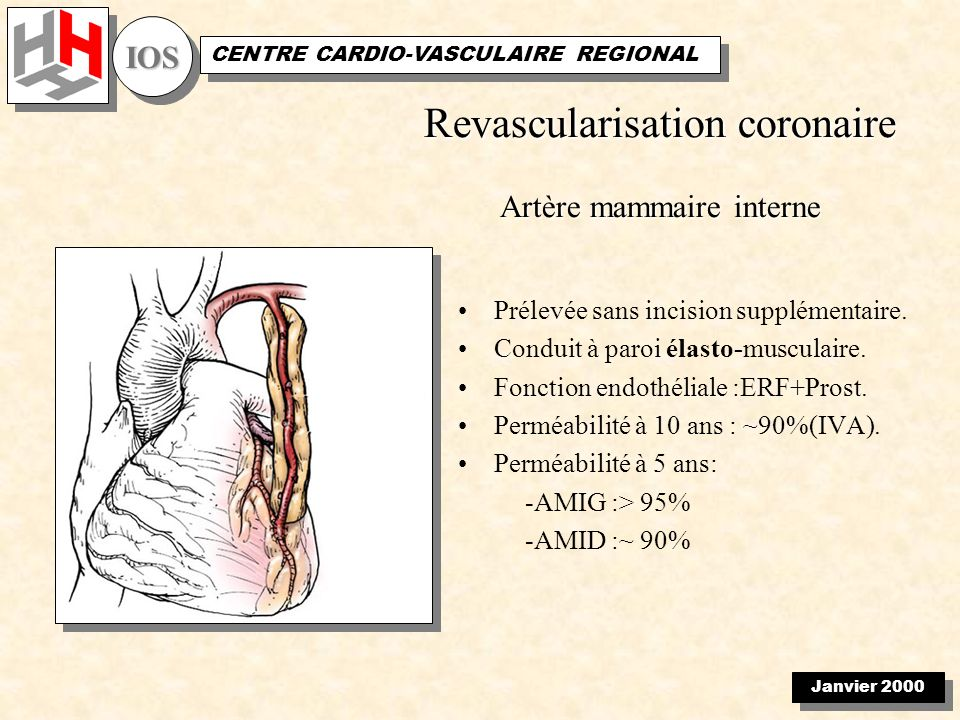 Janvier 2000 IOSIOS CENTRE CARDIO-VASCULAIRE REGIONAL Total coronary revascularization with the internal thoracic arteries T graft Morbidity: –Transient s-t elevation: 12 (11 %) –Q wave infarction: 3 (3 %) –Sternal infection: 1 (1%) Mortality: 0