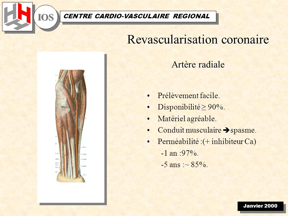 Janvier 2000 IOSIOS CENTRE CARDIO-VASCULAIRE REGIONAL Total coronary revascularization with the internal thoracic arteries T graft Follow-up(105 patients) –35 months(15-61) –Survival: 99 % –Stress test:80 patients.