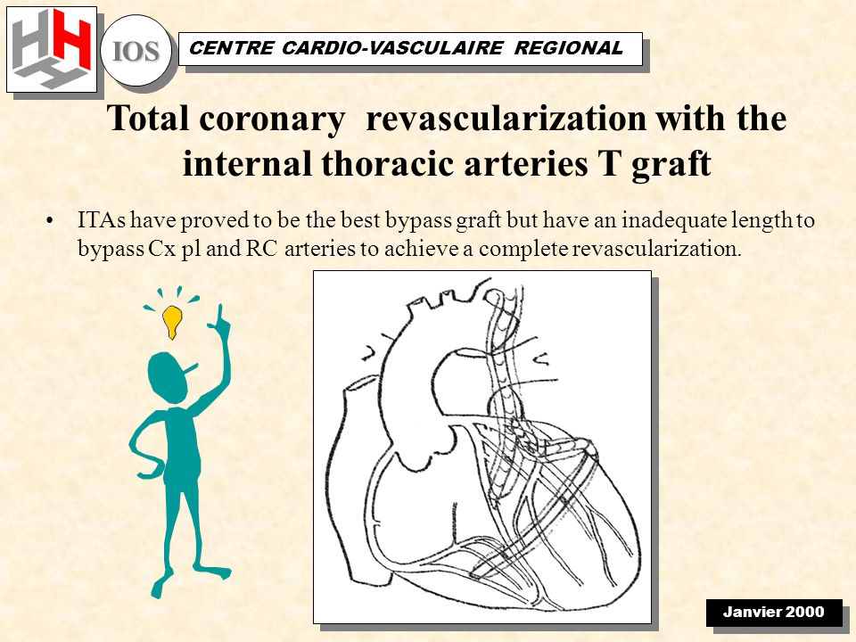 Janvier 2000 IOSIOS CENTRE CARDIO-VASCULAIRE REGIONAL Total coronary revascularization with the internal thoracic arteries T graft ITAs have proved to be the best bypass graft but have an inadequate length to bypass Cx pl and RC arteries to achieve a complete revascularization.
