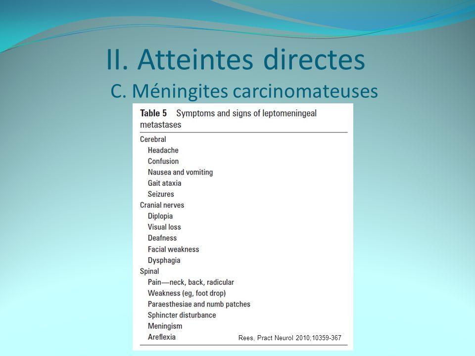 II. Atteintes directes C. Méningites carcinomateuses Rees, Pract Neurol 2010;10359-367
