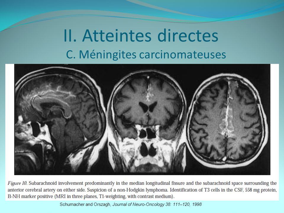 II. Atteintes directes C. Méningites carcinomateuses Schumacher and Orszagh, Journal of Neuro-Oncology 38: 111–120, 1998