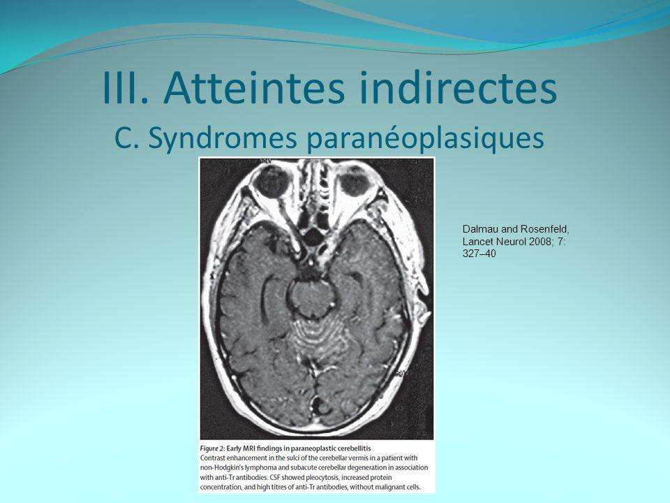 III.Atteintes indirectes C.