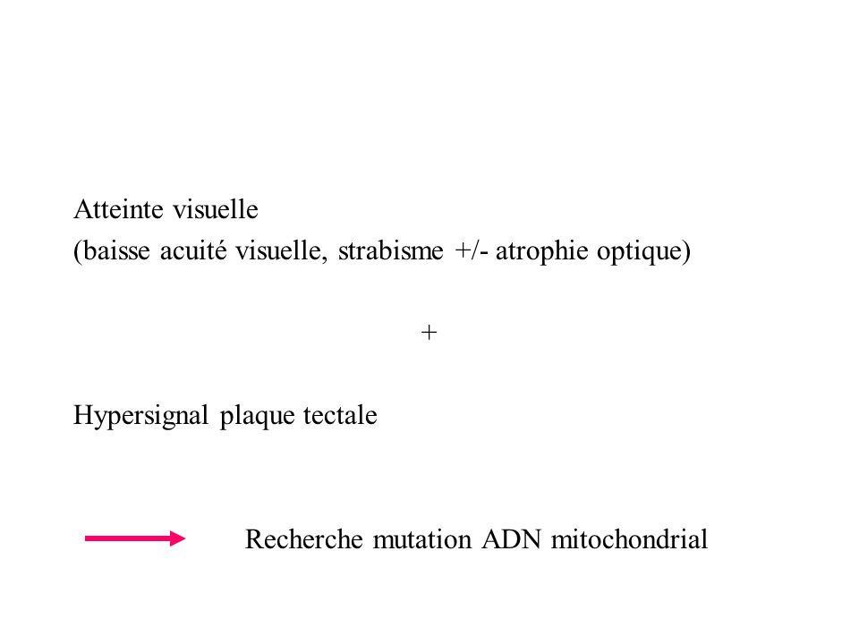Atteinte visuelle (baisse acuité visuelle, strabisme +/- atrophie optique) + Hypersignal plaque tectale Recherche mutation ADN mitochondrial