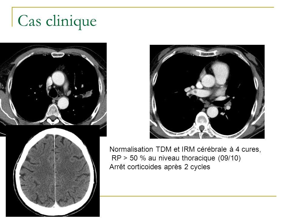 Cas clinique 2 À 4 cures, découverte dune EP asymptomatique Phlébite surale droite asymptomatique