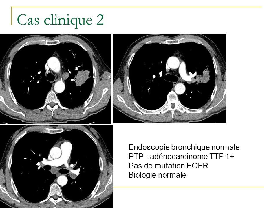 Cas clinique 2 Endoscopie bronchique normale PTP : adénocarcinome TTF 1+ Pas de mutation EGFR Biologie normale