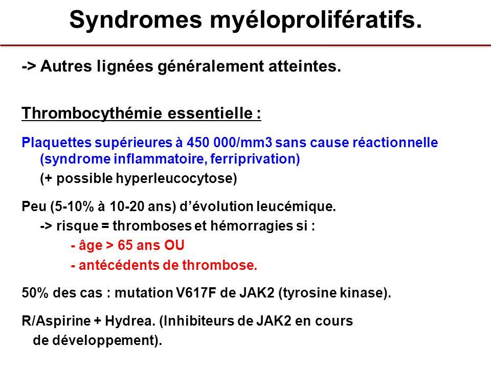 Syndromes myéloprolifératifs. -> Autres lignées généralement atteintes. Thrombocythémie essentielle : Plaquettes supérieures à 450 000/mm3 sans cause