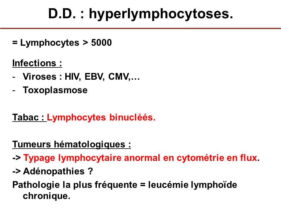 D.D. : hyperlymphocytoses. = Lymphocytes > 5000 Infections : -Viroses : HIV, EBV, CMV,… -Toxoplasmose Tabac : Lymphocytes binucléés. Tumeurs hématolog