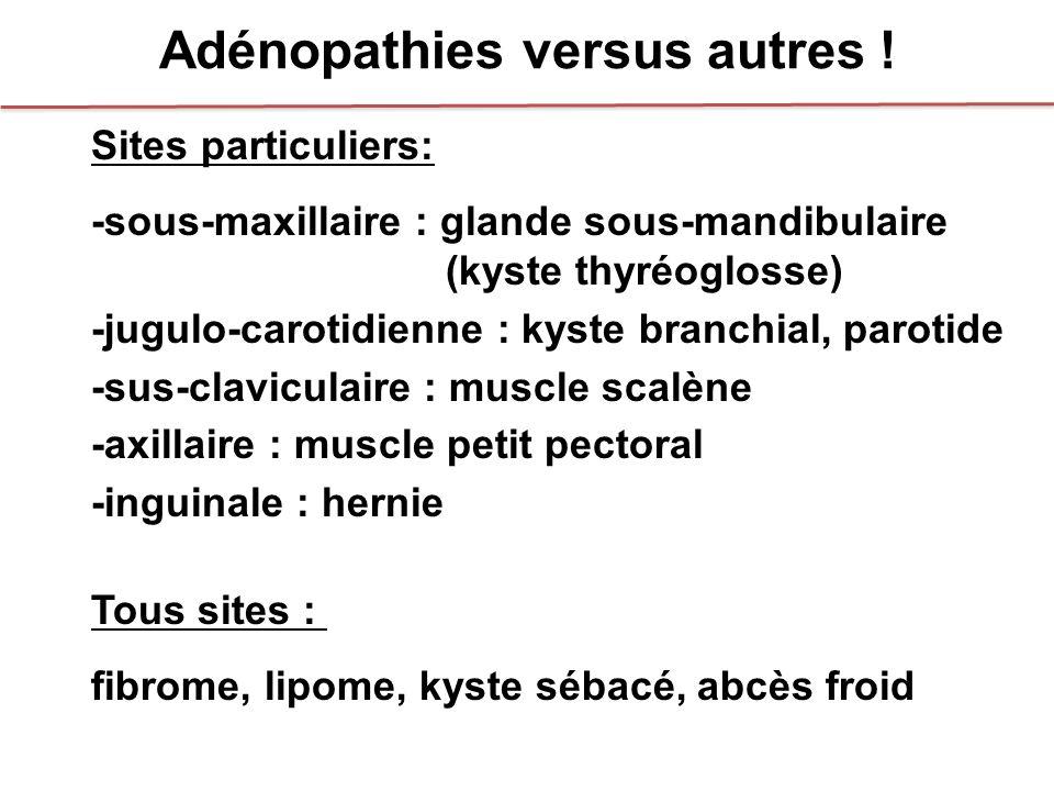 Adénopathies versus autres ! Sites particuliers: -sous-maxillaire : glande sous-mandibulaire (kyste thyréoglosse) -jugulo-carotidienne : kyste branchi