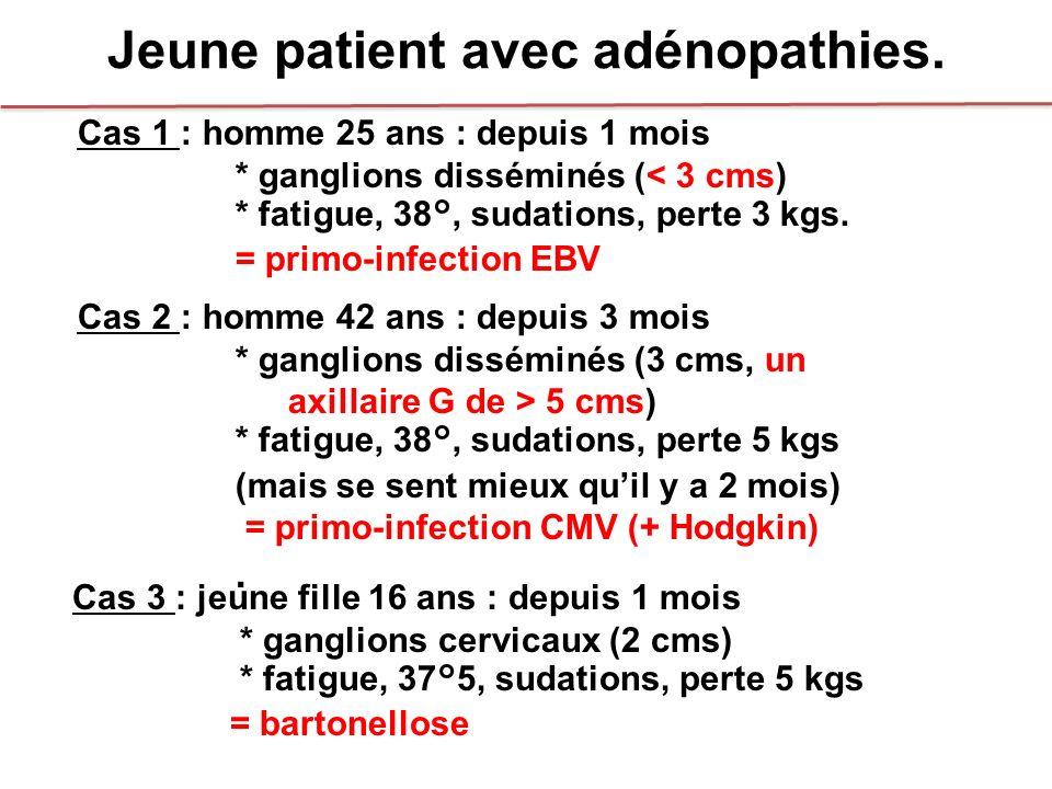 Jeune patient avec adénopathies. Cas 1 : homme 25 ans : depuis 1 mois * ganglions disséminés (< 3 cms) * fatigue, 38°, sudations, perte 3 kgs. = primo