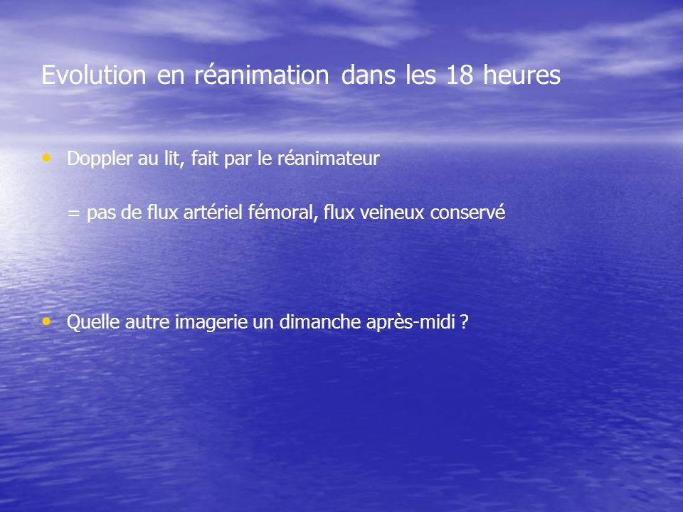 Evolution en réanimation dans les 18 heures Doppler au lit, fait par le réanimateur = pas de flux artériel fémoral, flux veineux conservé Quelle autre