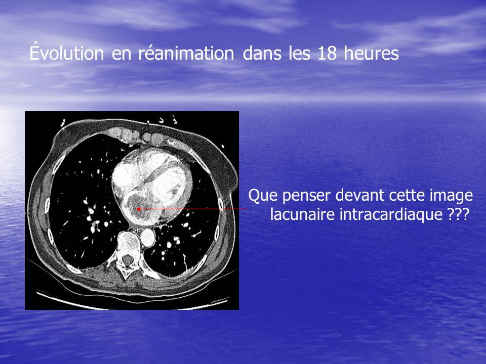 Évolution en réanimation dans les 18 heures Que penser devant cette image lacunaire intracardiaque ???