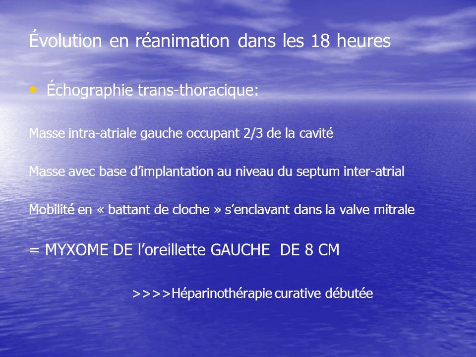 Évolution en réanimation dans les 18 heures Échographie trans-thoracique: Masse intra-atriale gauche occupant 2/3 de la cavité Masse avec base dimplantation au niveau du septum inter-atrial Mobilité en « battant de cloche » senclavant dans la valve mitrale = MYXOME DE loreillette GAUCHE DE 8 CM >>>>Héparinothérapie curative débutée