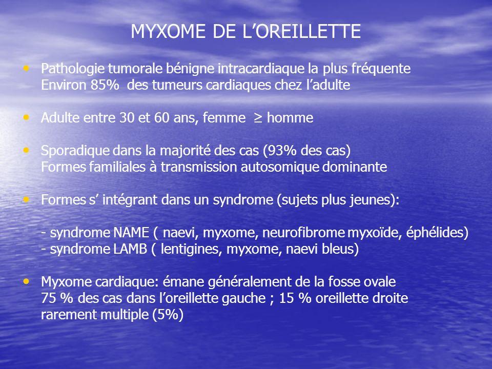MYXOME DE LOREILLETTE Pathologie tumorale bénigne intracardiaque la plus fréquente Environ 85% des tumeurs cardiaques chez ladulte Adulte entre 30 et 60 ans, femme homme Sporadique dans la majorité des cas (93% des cas) Formes familiales à transmission autosomique dominante Formes s intégrant dans un syndrome (sujets plus jeunes): - syndrome NAME ( naevi, myxome, neurofibrome myxoïde, éphélides) - syndrome LAMB ( lentigines, myxome, naevi bleus) Myxome cardiaque: émane généralement de la fosse ovale 75 % des cas dans loreillette gauche ; 15 % oreillette droite rarement multiple (5%)