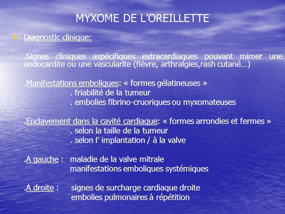 MYXOME DE LOREILLETTE Diagnostic clinique:.Signes cliniques aspécifiques extracardiaques pouvant mimer une endocardite ou une vascularite (fièvre, art