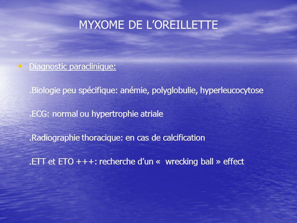MYXOME DE LOREILLETTE Diagnostic paraclinique:.Biologie peu spécifique: anémie, polyglobulie, hyperleucocytose.ECG: normal ou hypertrophie atriale.Radiographie thoracique: en cas de calcification.ETT et ETO +++: recherche dun « wrecking ball » effect