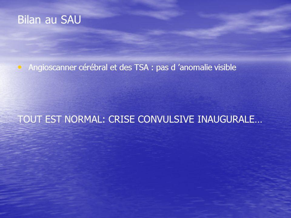 Bilan au SAU Angioscanner cérébral et des TSA : pas d anomalie visible TOUT EST NORMAL: CRISE CONVULSIVE INAUGURALE…