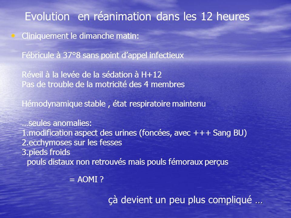 Evolution en réanimation dans les 12 heures Cliniquement le dimanche matin: Fébricule à 37°8 sans point dappel infectieux Réveil à la levée de la séda