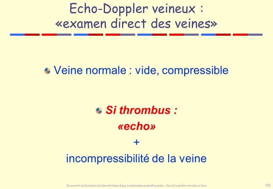 Document de formation strictement réservé aux collaborateurs sanofi aventis - Ne doit pas être remis à un tiers 119 Echo-Doppler veineux : «examen dir