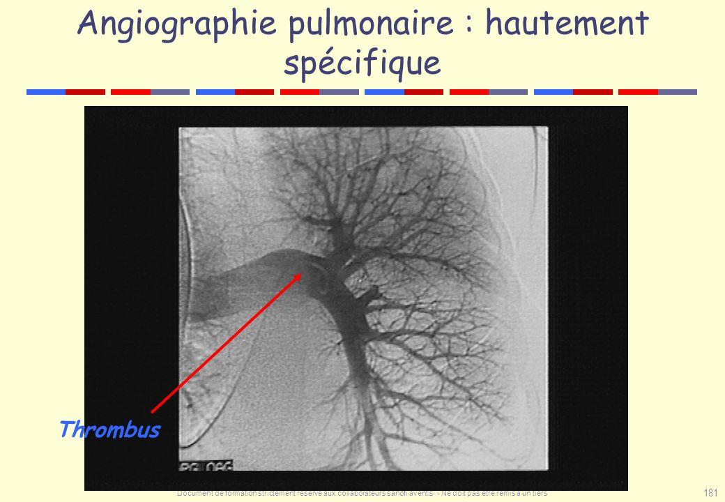 Document de formation strictement réservé aux collaborateurs sanofi aventis - Ne doit pas être remis à un tiers 181 Angiographie pulmonaire : hautemen