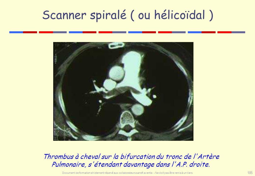 Document de formation strictement réservé aux collaborateurs sanofi aventis - Ne doit pas être remis à un tiers 185 Scanner spiralé ( ou hélicoïdal )