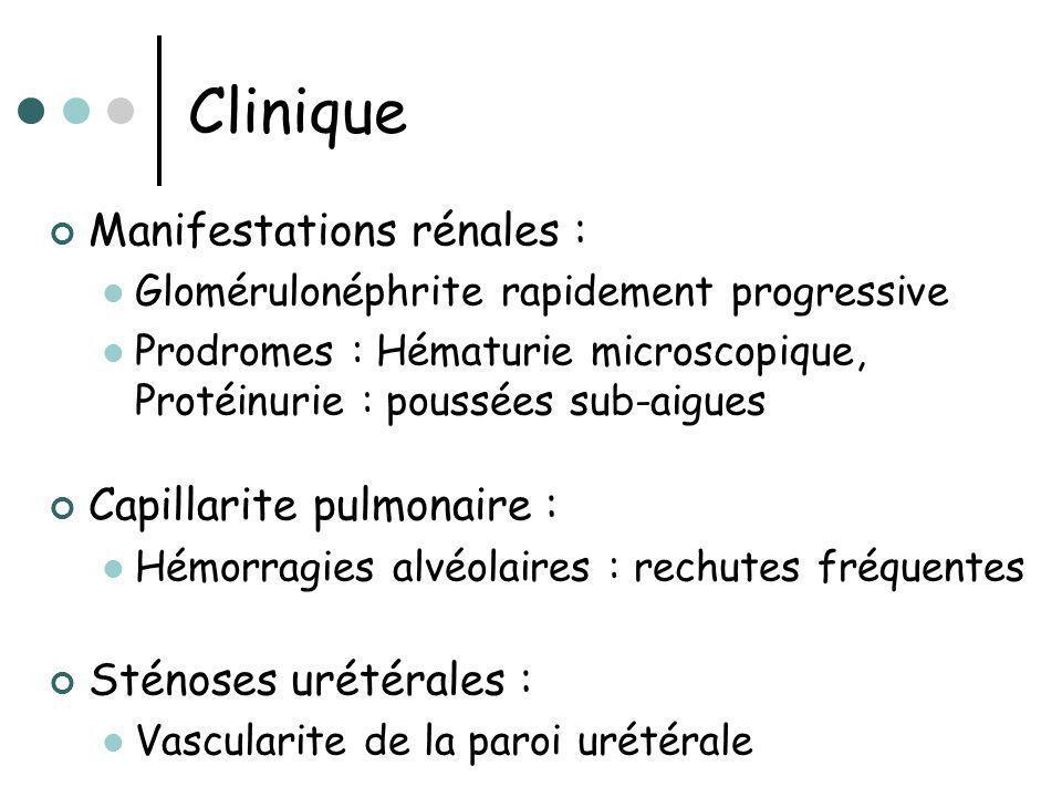 Clinique Manifestations rénales : Glomérulonéphrite rapidement progressive Prodromes : Hématurie microscopique, Protéinurie : poussées sub-aigues Capi