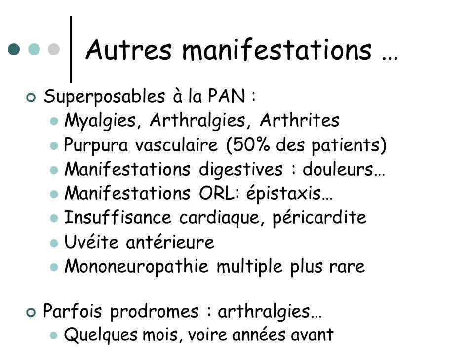 Autres manifestations … Superposables à la PAN : Myalgies, Arthralgies, Arthrites Purpura vasculaire (50% des patients) Manifestations digestives : do