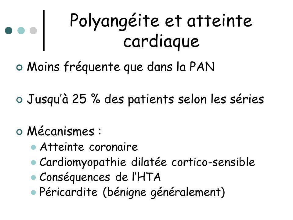 Polyangéite et atteinte cardiaque Moins fréquente que dans la PAN Jusquà 25 % des patients selon les séries Mécanismes : Atteinte coronaire Cardiomyop
