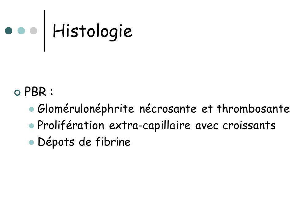 Histologie PBR : Glomérulonéphrite nécrosante et thrombosante Prolifération extra-capillaire avec croissants Dépots de fibrine