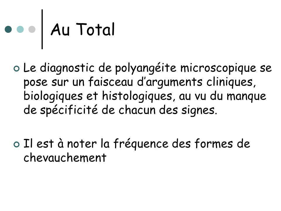 Au Total Le diagnostic de polyangéite microscopique se pose sur un faisceau darguments cliniques, biologiques et histologiques, au vu du manque de spé