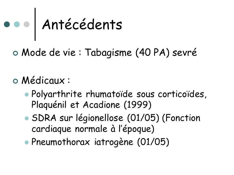 Antécédents Mode de vie : Tabagisme (40 PA) sevré Médicaux : Polyarthrite rhumatoïde sous corticoïdes, Plaquénil et Acadione (1999) SDRA sur légionell
