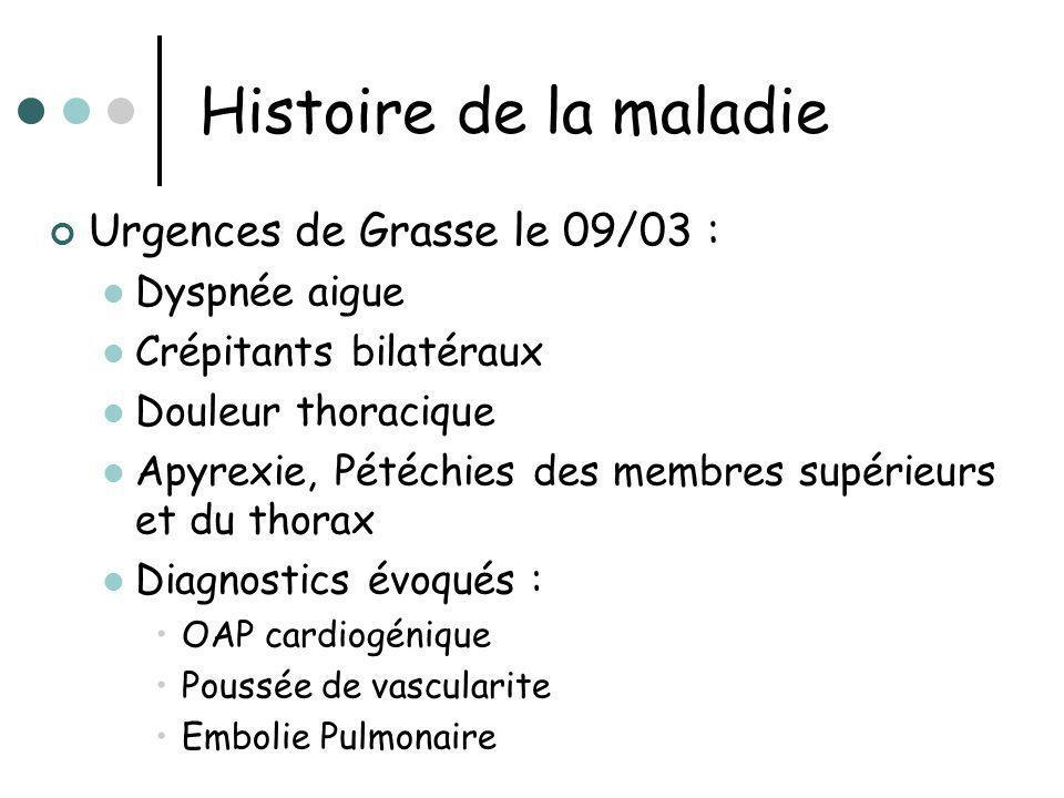 Histoire de la maladie Urgences de Grasse le 09/03 : Dyspnée aigue Crépitants bilatéraux Douleur thoracique Apyrexie, Pétéchies des membres supérieurs