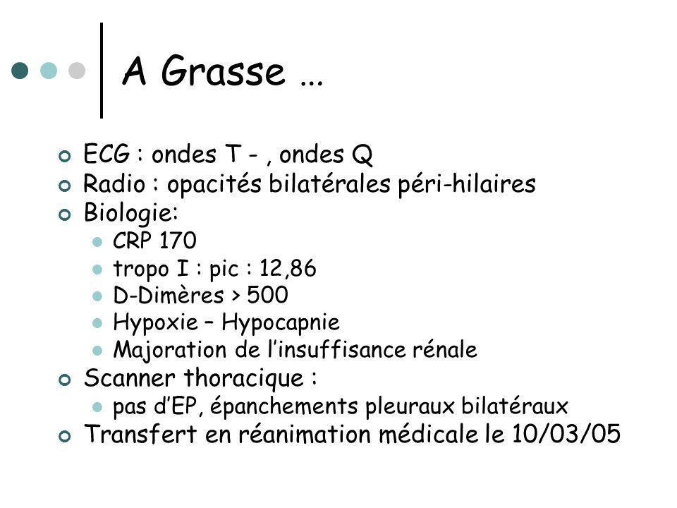 A Grasse … ECG : ondes T -, ondes Q Radio : opacités bilatérales péri-hilaires Biologie: CRP 170 tropo I : pic : 12,86 D-Dimères > 500 Hypoxie – Hypoc