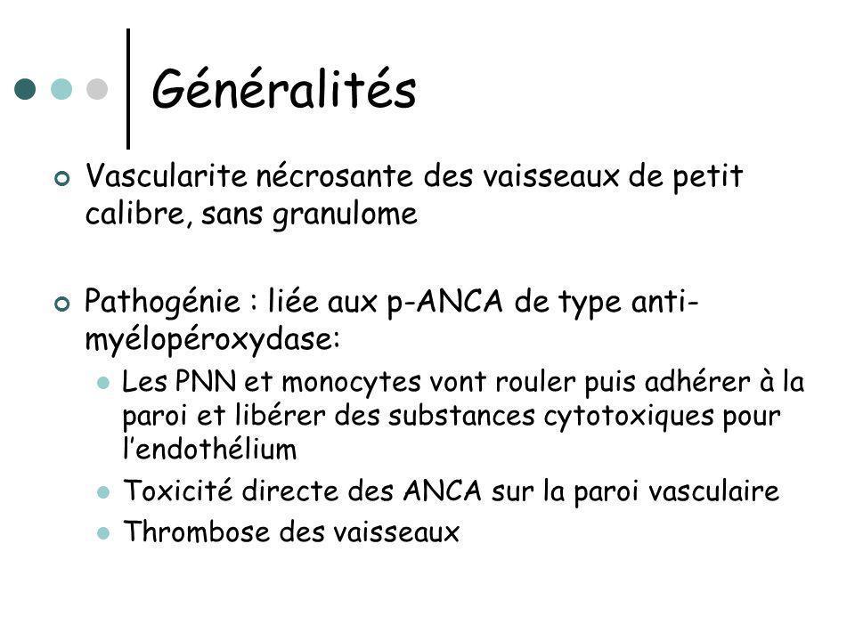 Généralités Vascularite nécrosante des vaisseaux de petit calibre, sans granulome Pathogénie : liée aux p-ANCA de type anti- myélopéroxydase: Les PNN