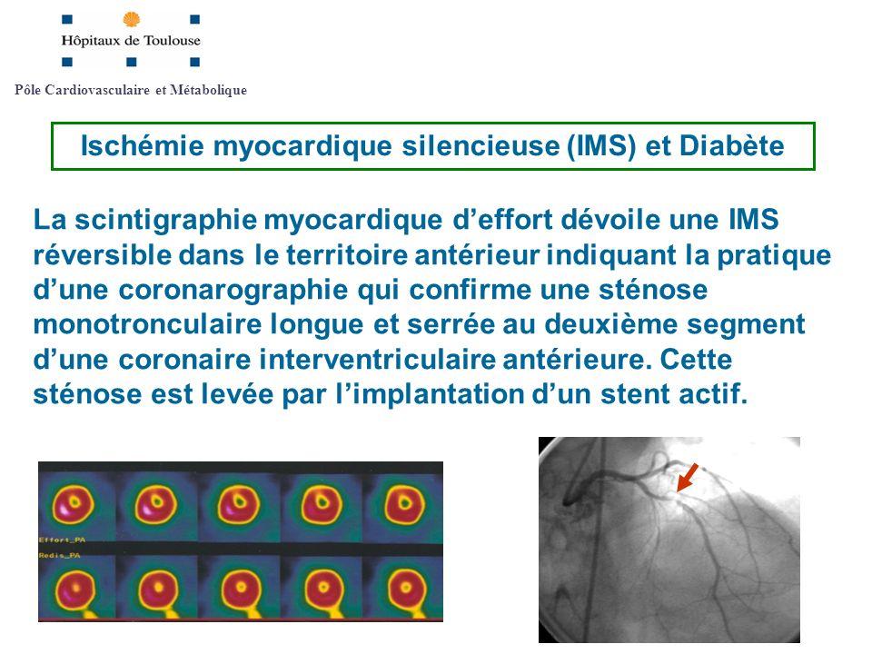 La scintigraphie myocardique deffort dévoile une IMS réversible dans le territoire antérieur indiquant la pratique dune coronarographie qui confirme u
