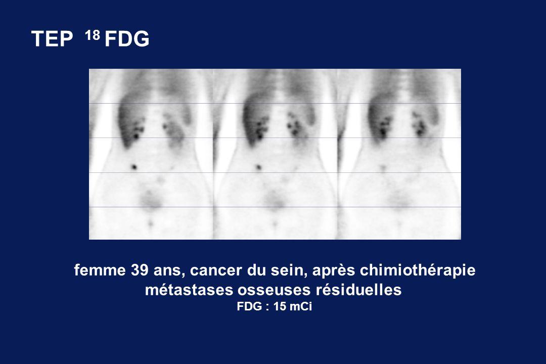 femme 39 ans, cancer du sein, après chimiothérapie métastases osseuses résiduelles FDG : 15 mCi