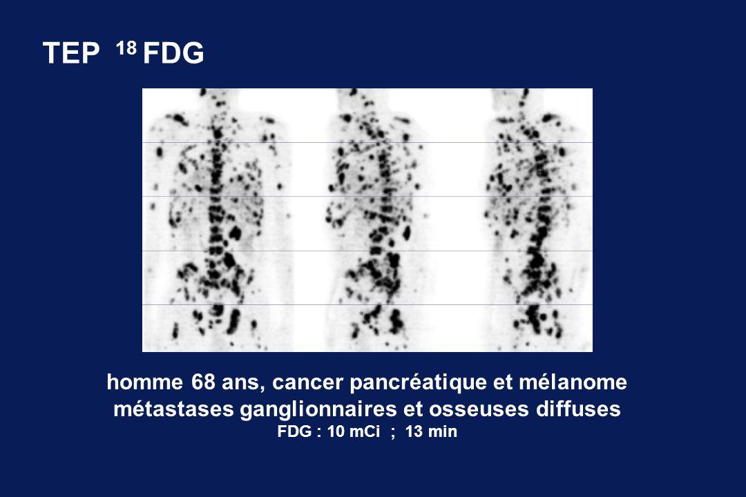 TEP 18 FDG homme 68 ans, cancer pancréatique et mélanome métastases ganglionnaires et osseuses diffuses FDG : 10 mCi ; 13 min