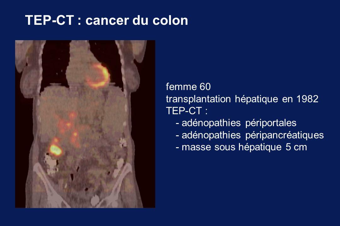 TEP-CT : cancer du colon femme 60 transplantation hépatique en 1982 TEP-CT : - adénopathies périportales - adénopathies péripancréatiques - masse sous hépatique 5 cm
