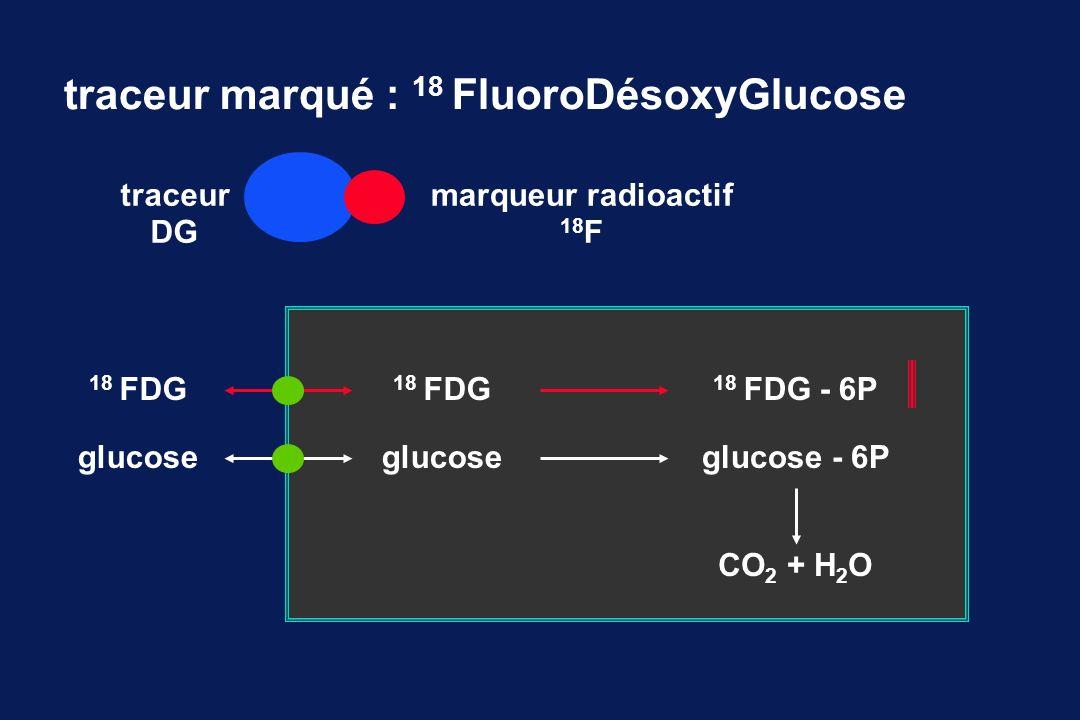 traceur marqué : 18 FluoroDésoxyGlucose traceur DG marqueur radioactif 18 F 18 FDG glucose 18 FDG 18 FDG - 6P glucoseglucose - 6P CO 2 + H 2 O