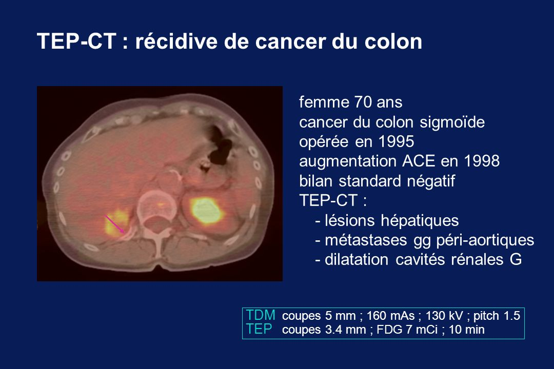 TEP-CT : récidive de cancer du colon femme 70 ans cancer du colon sigmoïde opérée en 1995 augmentation ACE en 1998 bilan standard négatif TEP-CT : - l