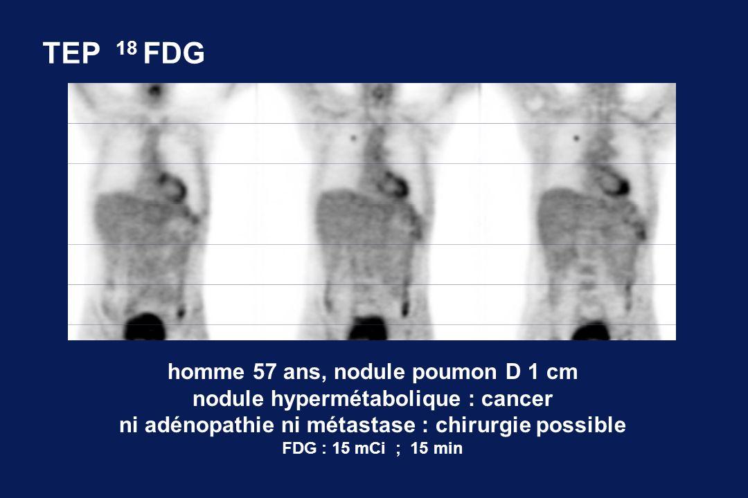 TEP 18 FDG homme 57 ans, nodule poumon D 1 cm nodule hypermétabolique : cancer ni adénopathie ni métastase : chirurgie possible FDG : 15 mCi ; 15 min