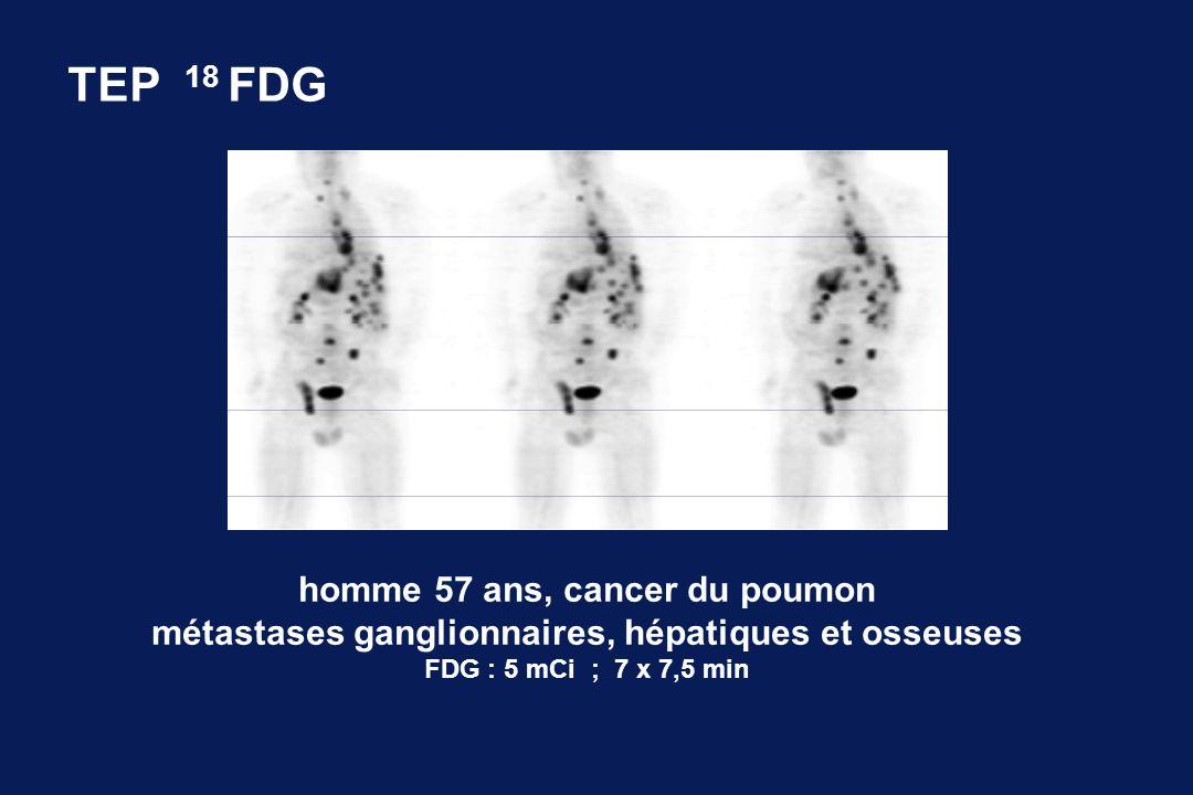 homme 57 ans, cancer du poumon métastases ganglionnaires, hépatiques et osseuses FDG : 5 mCi ; 7 x 7,5 min TEP 18 FDG