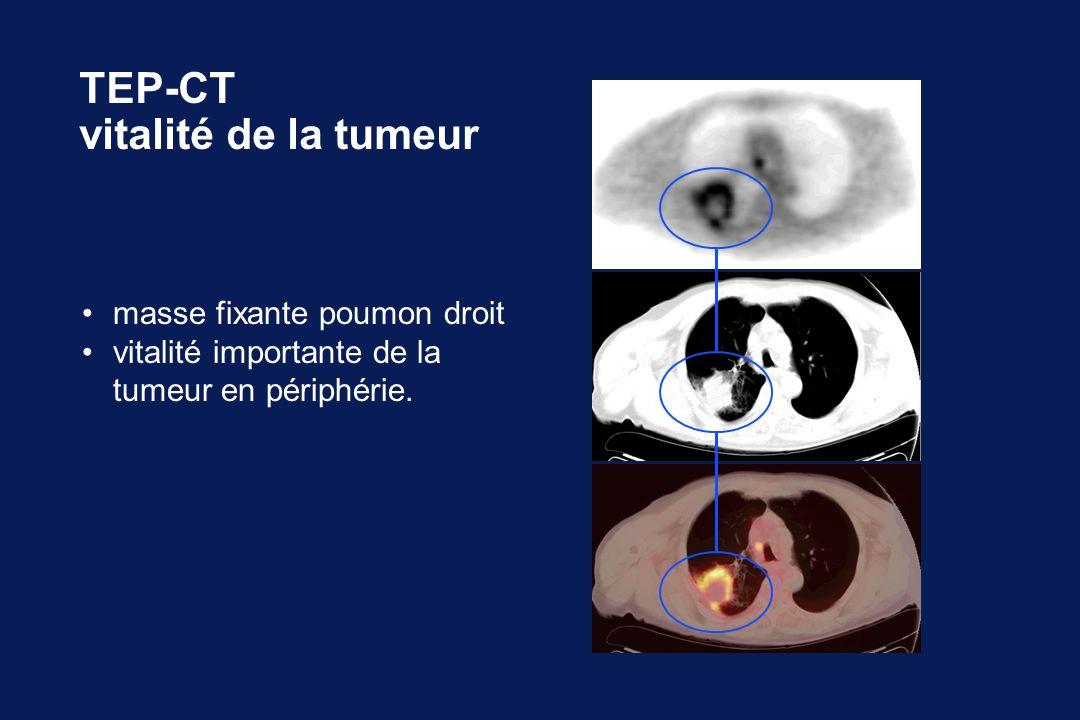 TEP-CT vitalité de la tumeur masse fixante poumon droit vitalité importante de la tumeur en périphérie.