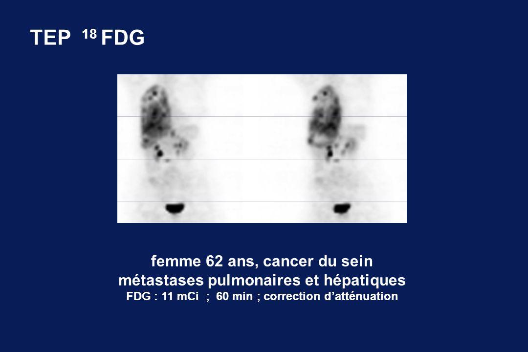 femme 62 ans, cancer du sein métastases pulmonaires et hépatiques FDG : 11 mCi ; 60 min ; correction datténuation TEP 18 FDG