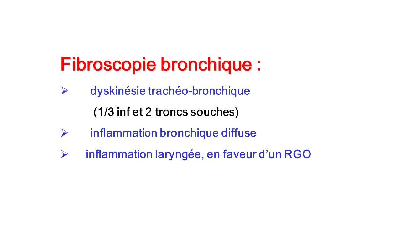 Fibroscopie bronchique Fibroscopie bronchique : dyskinésie trachéo-bronchique (1/3 inf et 2 troncs souches) inflammation bronchique diffuse inflammati