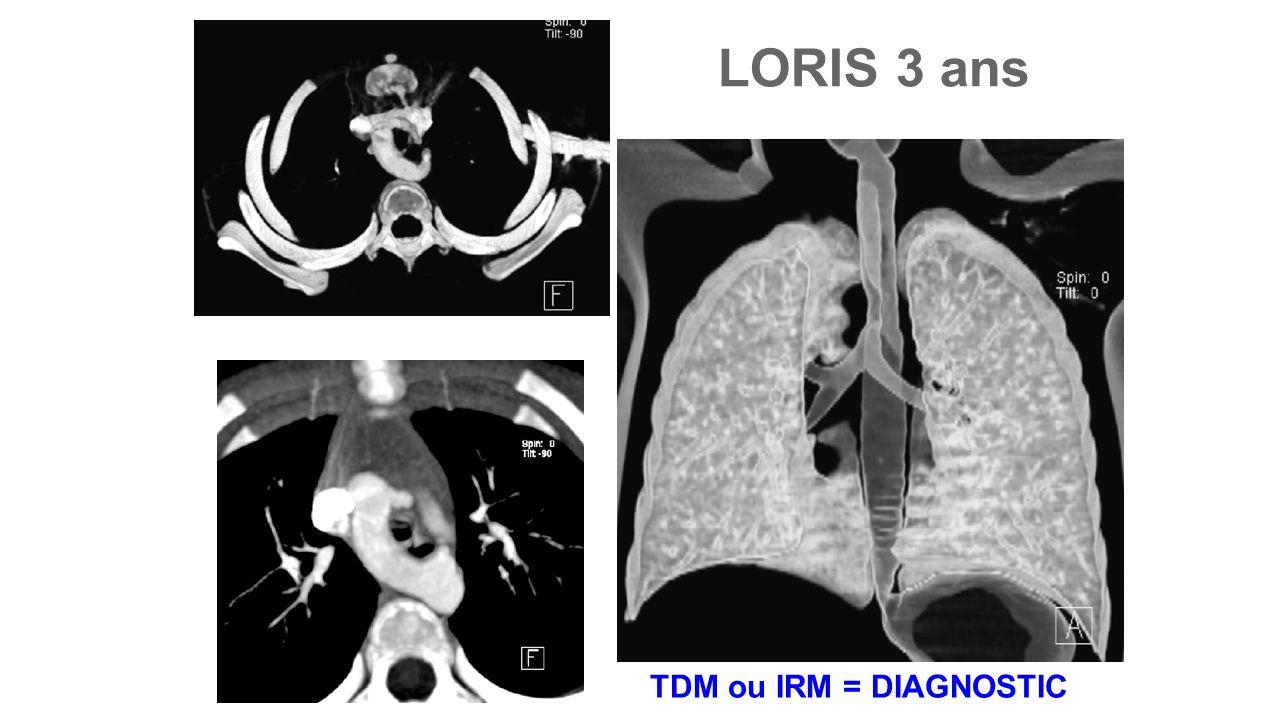 LORIS 3 ans TDM ou IRM = DIAGNOSTIC