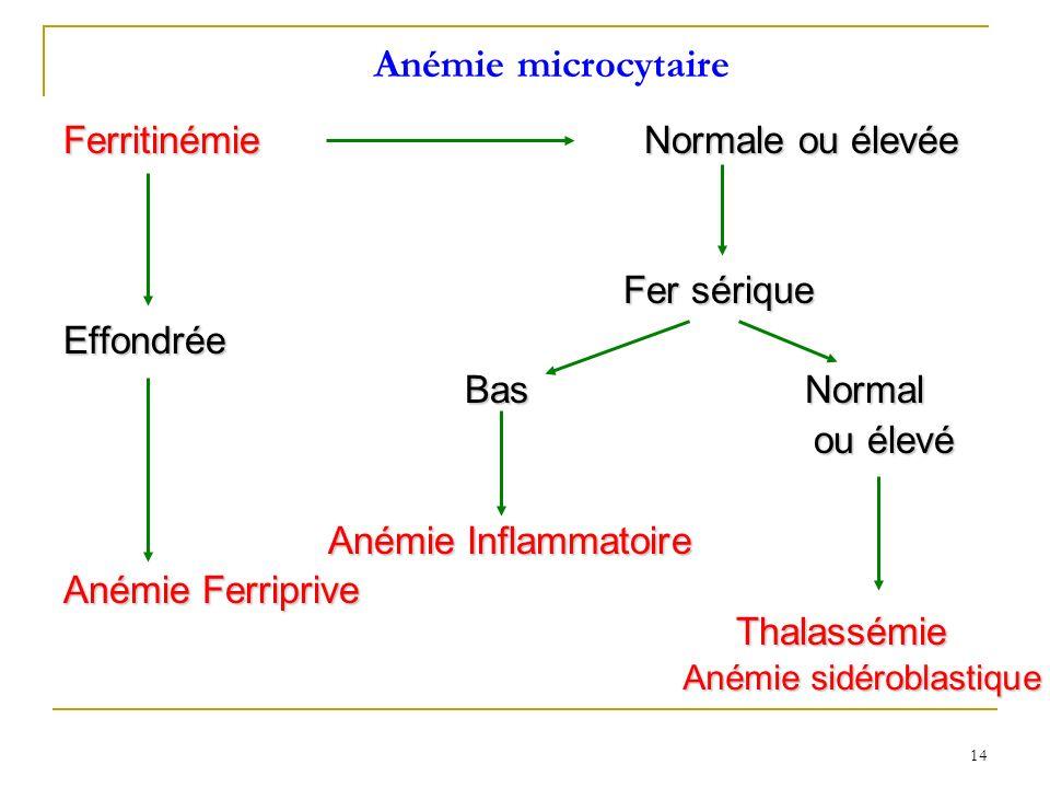 Anémie microcytaire Ferritinémie Normale ou élevée Fer sérique Fer sériqueEffondrée Bas Normal Bas Normal ou élevé ou élevé Anémie Inflammatoire Anémi